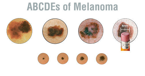 Melanoma Symptoms and Detection