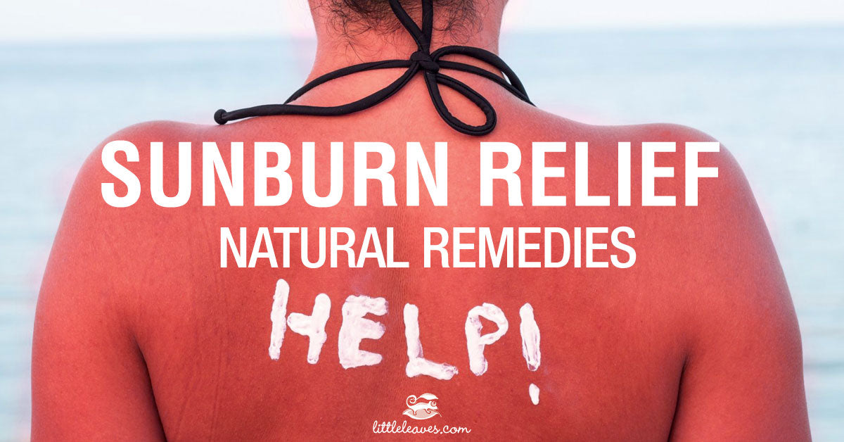 Sunburn Relief Natural Sunburn Remedies