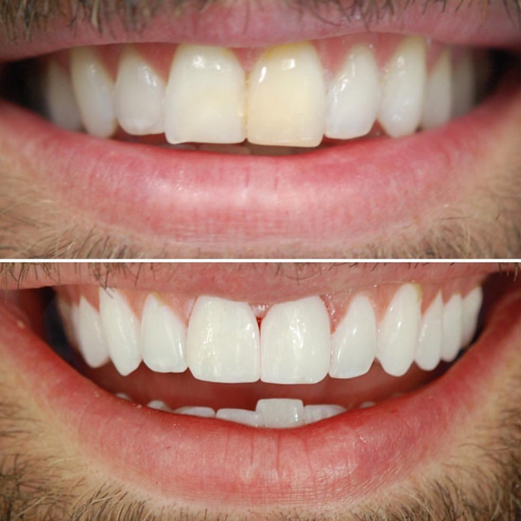 White teeth - movie stars tricks or teeth whitening gel, powder in Dubai?