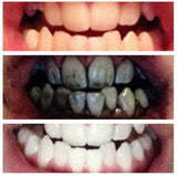 Bamboo Charcoal Teeth Whitening Toothpaste