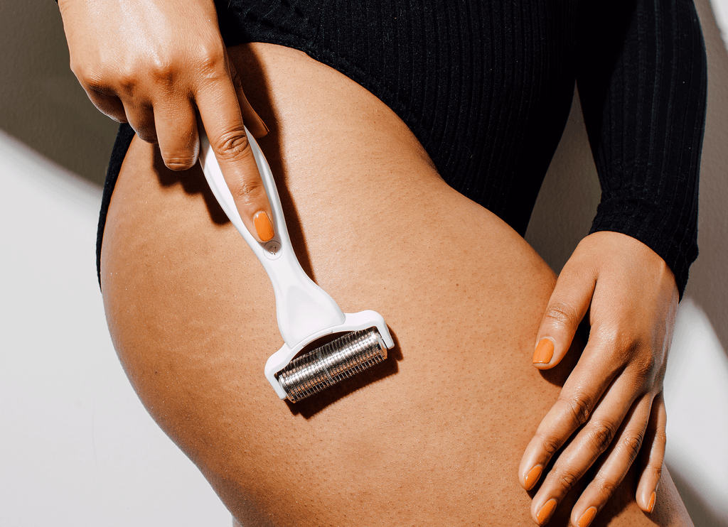 What is Cellulite? Cellulite FAQ | How Women Can Get Rid of Cellulite