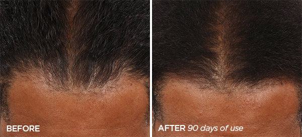 Man's Before and After Image showing Hairline regrowth after using the Scalp & Beard Stimulator Set for 60 days