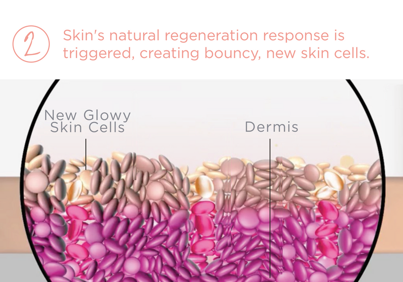 GloPRO Helps Regenerate New, Healthy Skin Cells