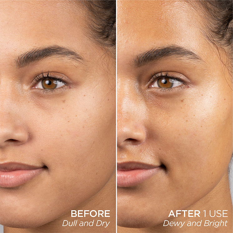 CLINICALLY PROVEN RESULTS AFTER 1 USE