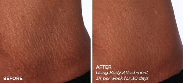 GloPRO Body Images Before and After Derma Rolling for Stretch Marks