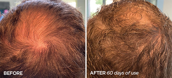 Man's Before and After Image showing how he naturally regrew Hair where he was balding  using the Scalp & Beard Stimulator Set for 60 days