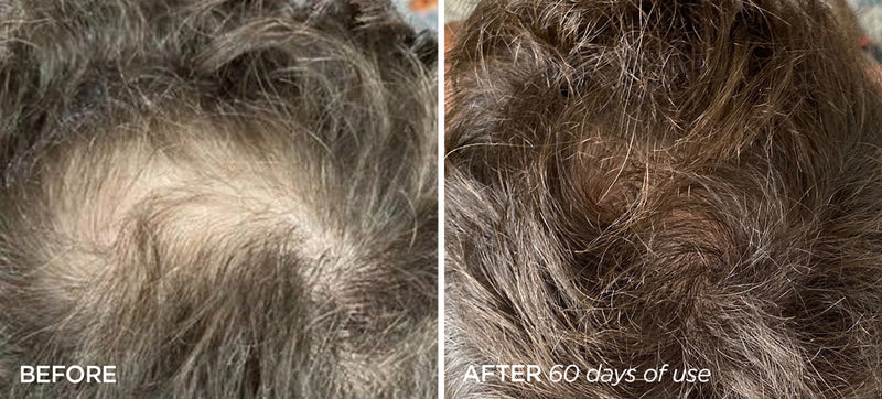 Man's Before and After Image showing Hair regrowth at the back of his head using the Scalp & Beard Stimulator Set