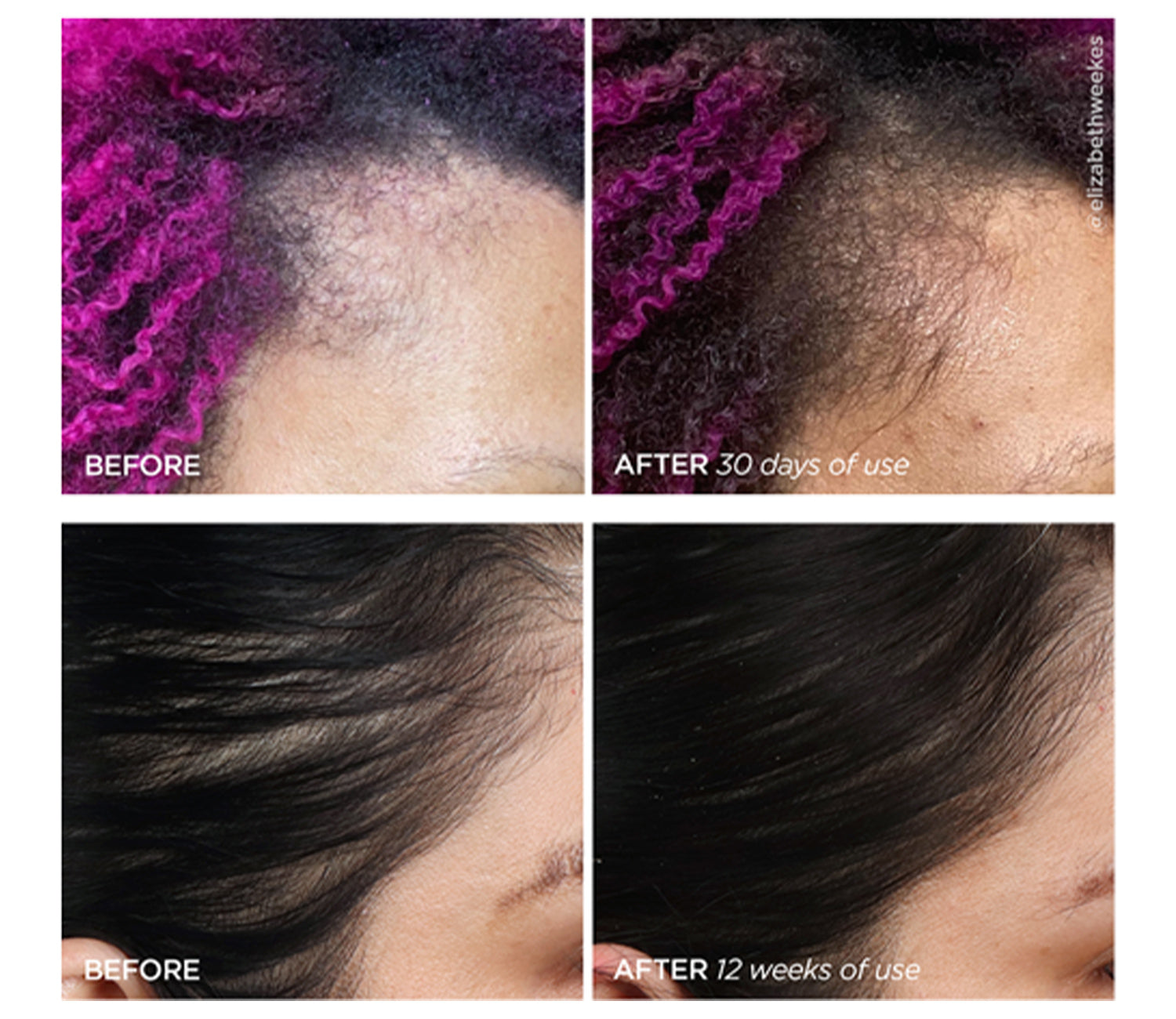 Scalp Before and After Increased Hair Fullness