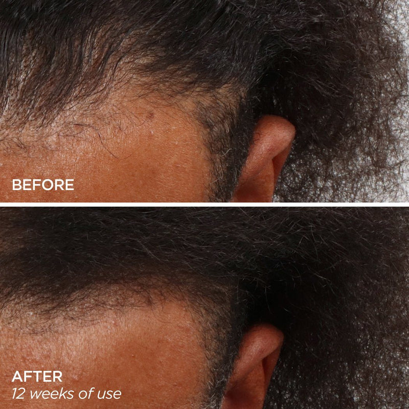 Men's Scalp & Beard hair loss treatment Helps Thicken Receding Hairlines