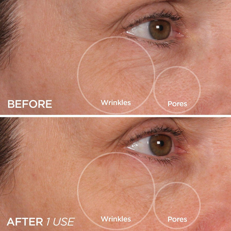 Cryo Roller Reduces Wrinkles & Tightens Pores