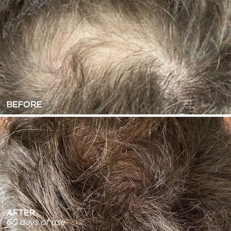 Men's Scalp & Beard hair loss treatment Helps Thinning Hair and Bald Spots