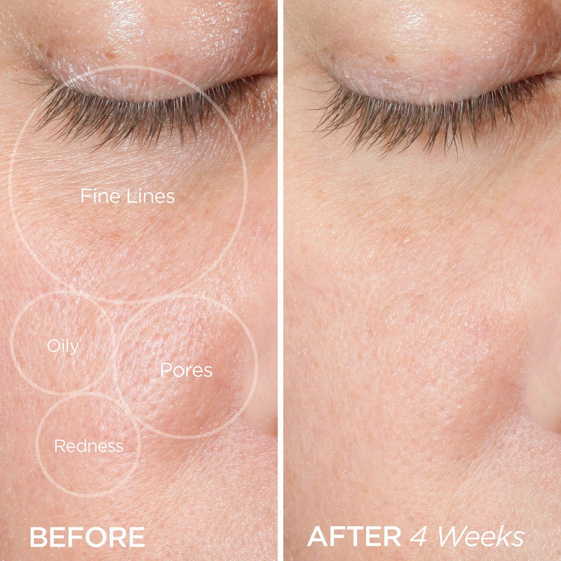The ZenBubble Gel Cream Helps Reduce Fine Lines