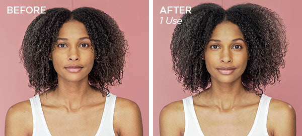 Before & After Healthy Scalp Dry Shampoo