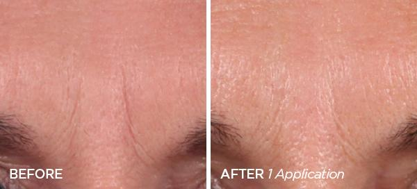 Before & After The Quench Quadralipid Rapid Recovery Cream & Limited Edition Rose Gold Glitter Ornament