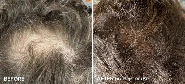 Before & After Men's Scalp Stimulator Duo