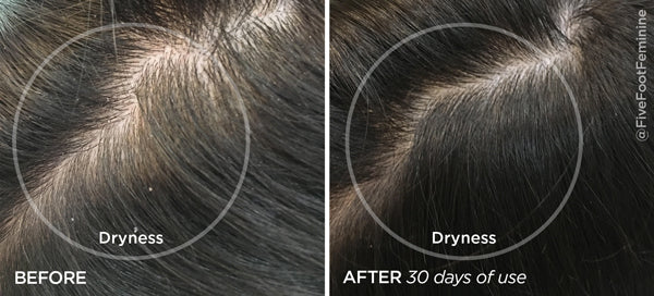 Before & After Haircare Power Duo