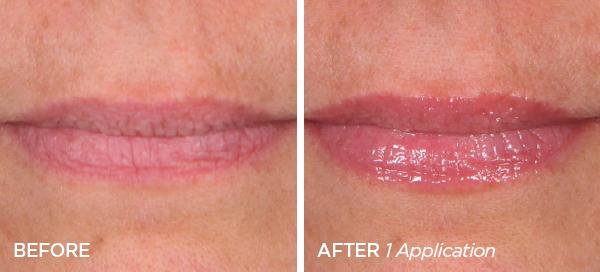 Before & After The Pout Colada Cocktail Lip Plumping Serum Holiday Edition