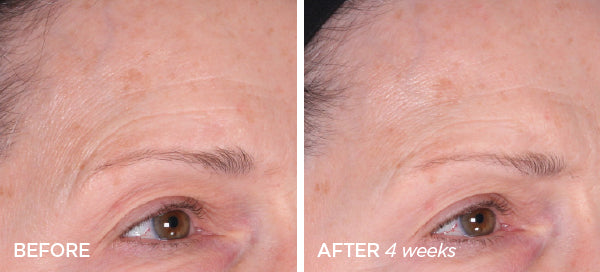 Before & After Smoother Skin PM Bundle