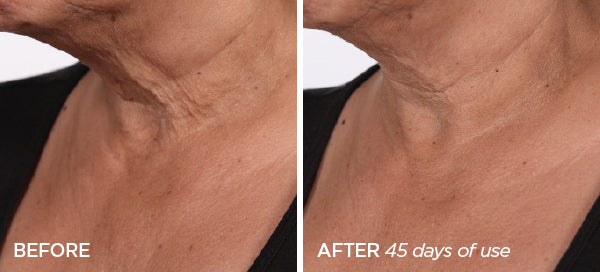 Before & After R45 | The Lift