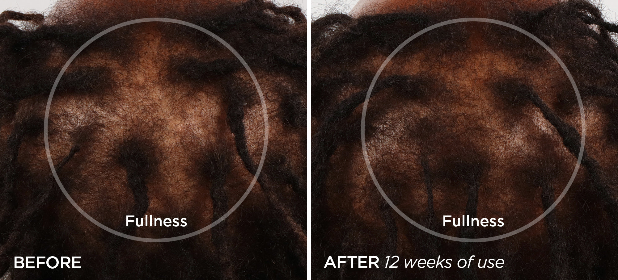 Before & After GloPRO® SCALP Attachment