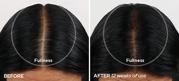 Before & After Rejuvenating Scalp + Fuller Hair Therapy Set