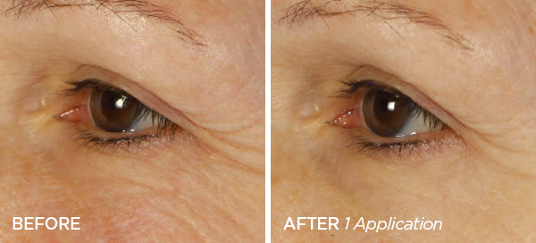 Before & After Instant Eye Lift Duo