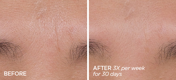 Before & After Bloom Firmer Skin Bundle