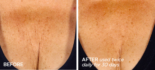 Before & After Triple Benefit Body Bundle For Skin, Hair & Nails