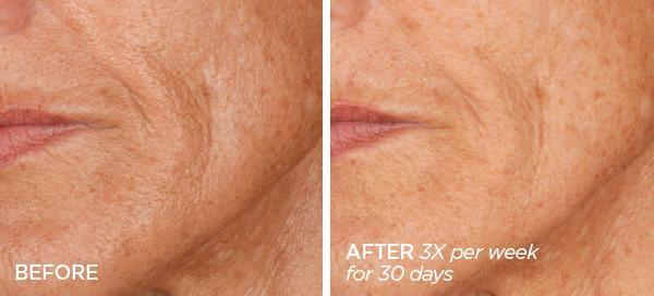 Before & After Skin That Glitters