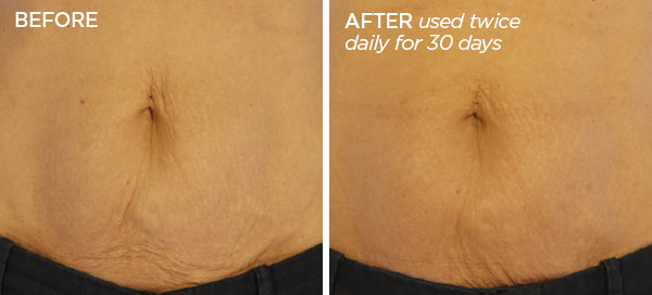 Before & After Body Talk Bundle