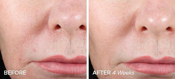 Before & After The Mini Cleanse & Zen Set