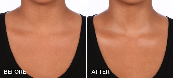 Before & After The Radiance | Body