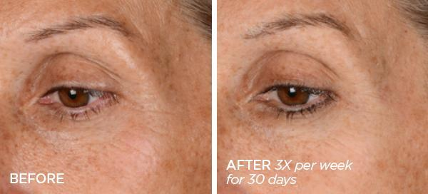 Before & After GloPRO® Microneedling Facial Regeneration Tool