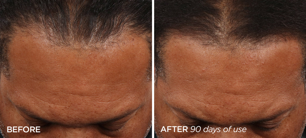 Before & After GloPRO® SCALP Attachment for Men's Scalp & Beard