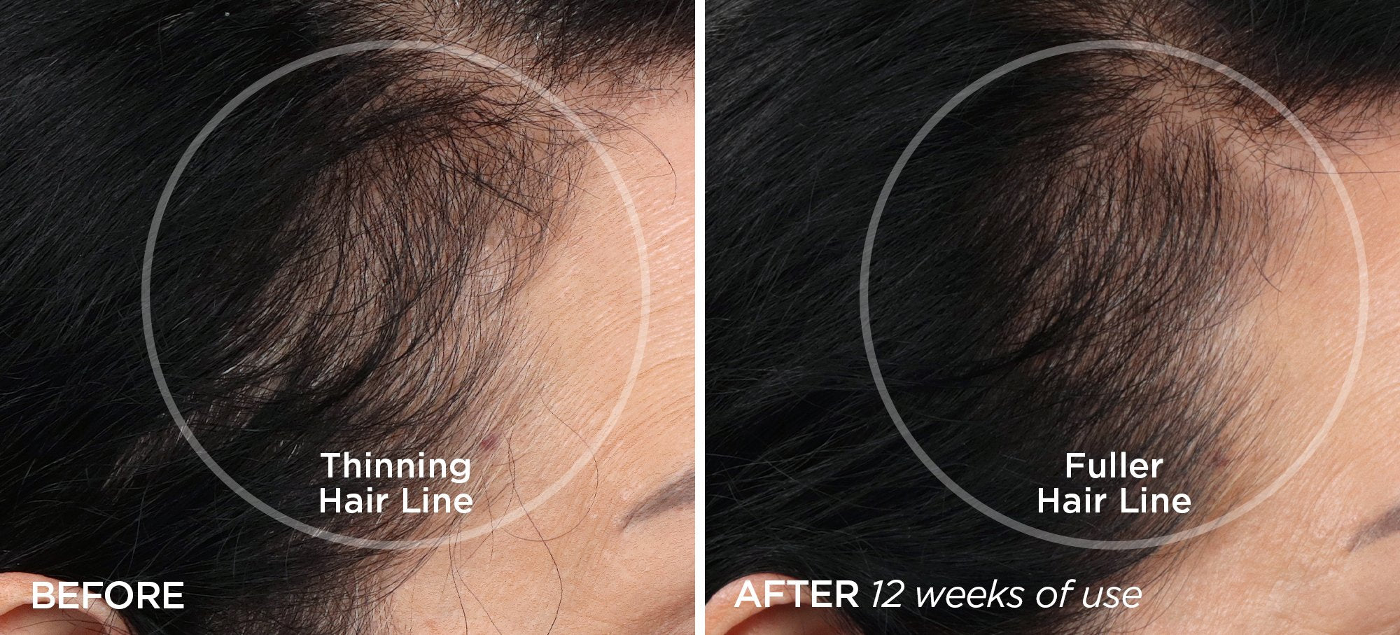 Before & After Smoother Skin & Thicker Hair Bundle
