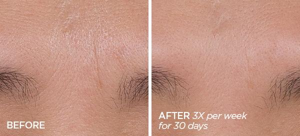Before & After GloPRO® FACE MicroTip Attachment Duo