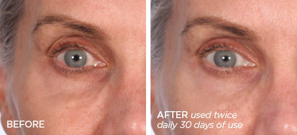 Before & After Instant Eye Lift Bundle