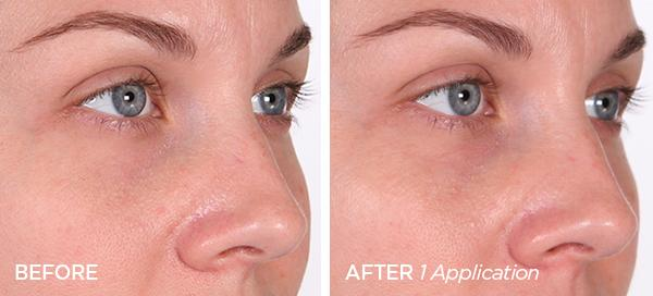 Before & After Peel N' Glow Pore Refining Facial Set