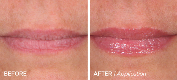 Before & After Bloom Fuller Lips Bundle