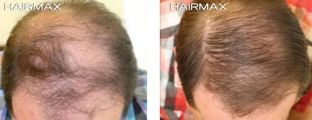 hair max plus minoxidil 5 results