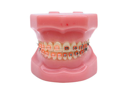 HST-B3-02 Dental Ortho Metal&Ceramic