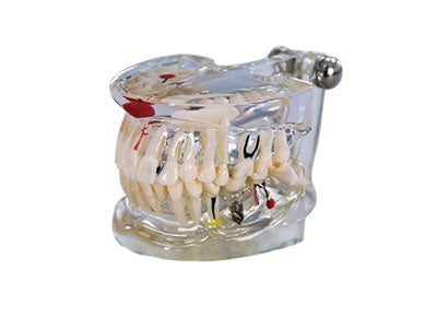 HST-C4 Dental Pathology Model with Implant