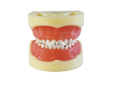 HST-E10 Dental Caries Model of Child