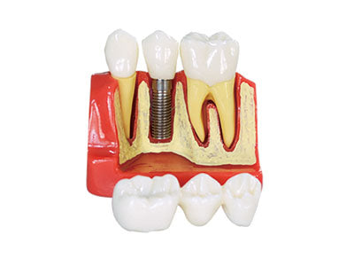 HST-M3 4Times Dental Implant Model