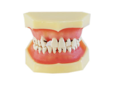 HST-L4 Dental Peridontal Disease Model