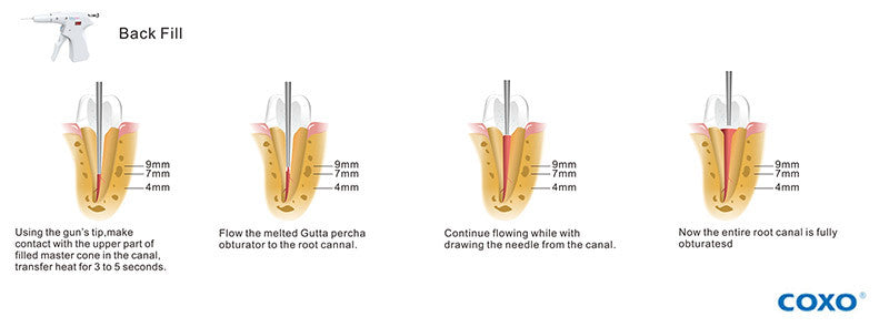 COXO® C-Fill Dental Obturation Unit