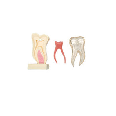 HST-C21 6 Times Anatomic Profile Model of Mandibular Molar