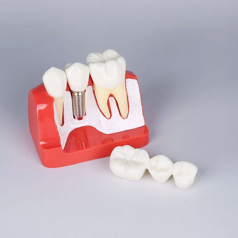 Teeth Implant Analysis Model XX-M2017