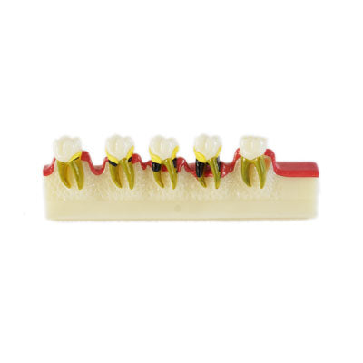 HST-M8 Dental Peridontal Diseases Developing Model