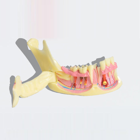 Dental Mandible Pathologies Model XX-M4014